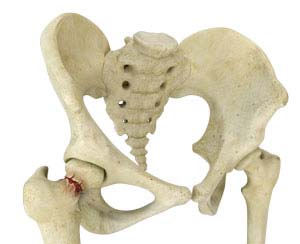 Hip Fracture