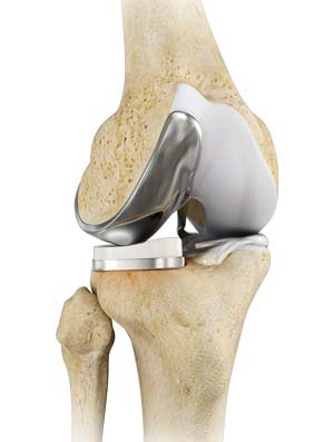 Unicompartmental Knee Replacement